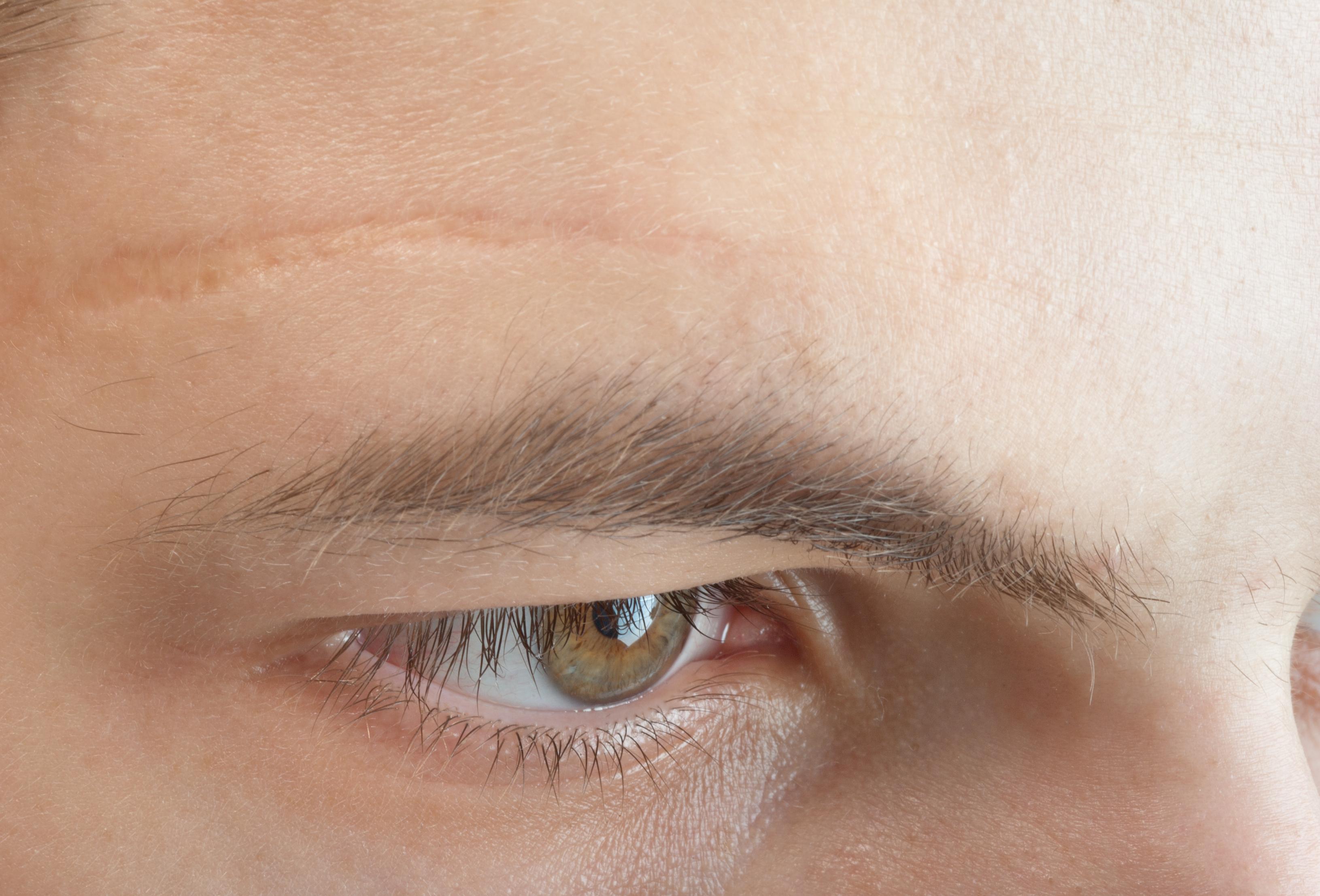 cicatrice et cicatrisation d'une plaie